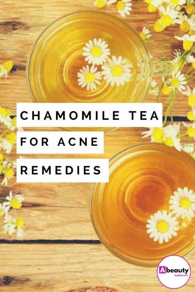 Chamomile Tea For Acne