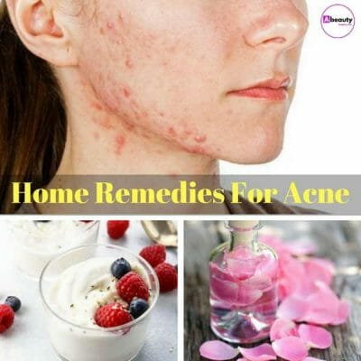 34+ Home Remedies for Acne Treatment at Home