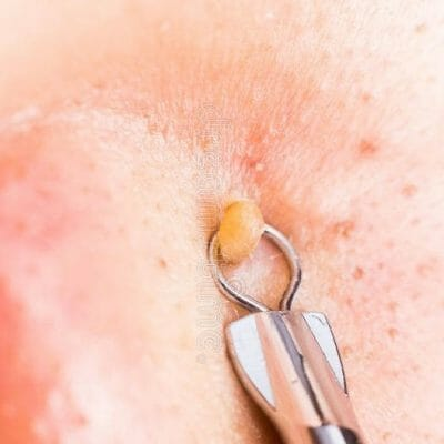 TOP 5 Best Pimple Popping Tool 2018: Comedone Extractor Reviews & Buying Guide