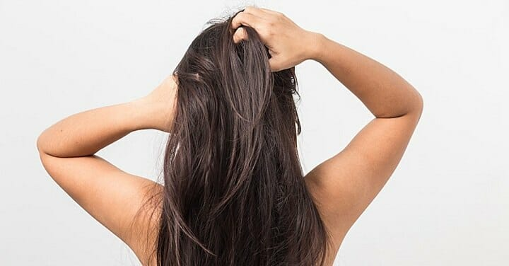 What is the Best Shampoo for Psoriasis of the Scalp
