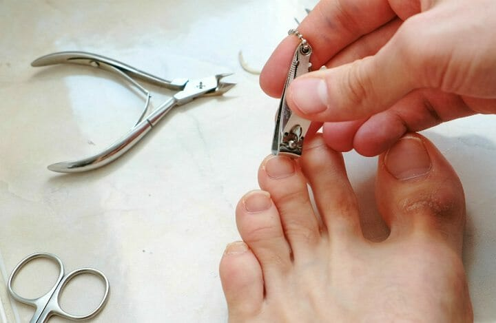 Benefits of Using Toenail Clippers