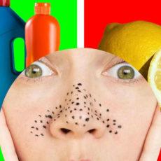 Remove Blackheads | Beauty Hacks