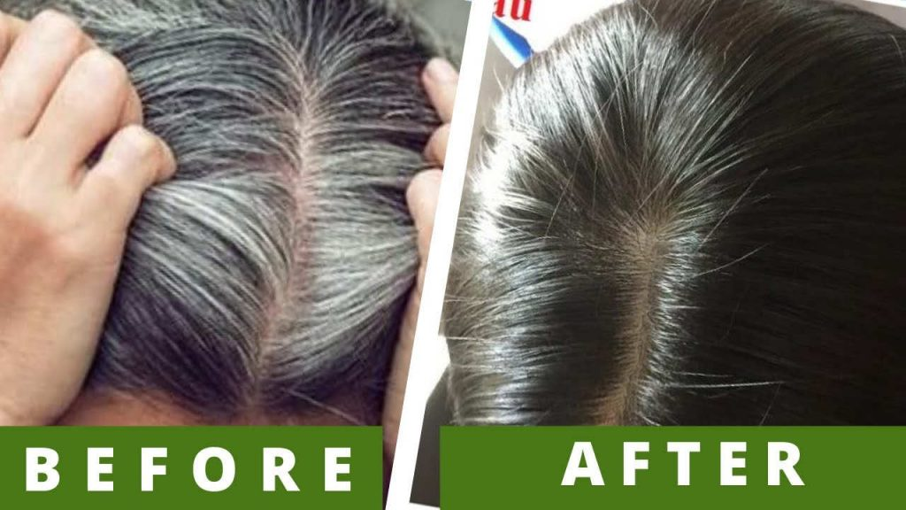 treat gray hair at home