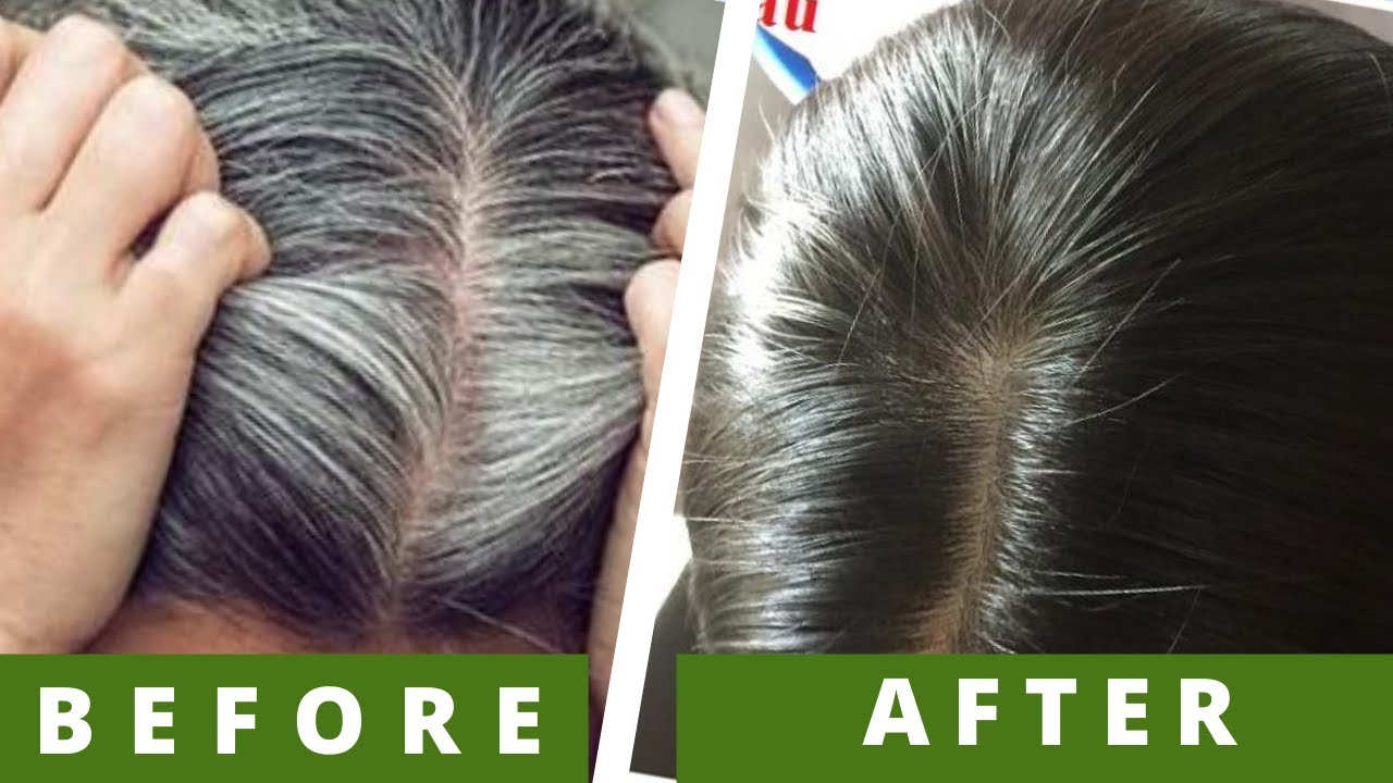 treat gray hair at home