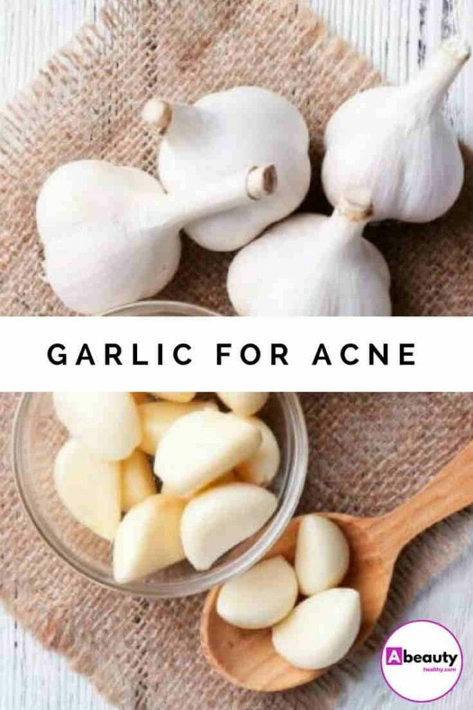 Garlic For Acne