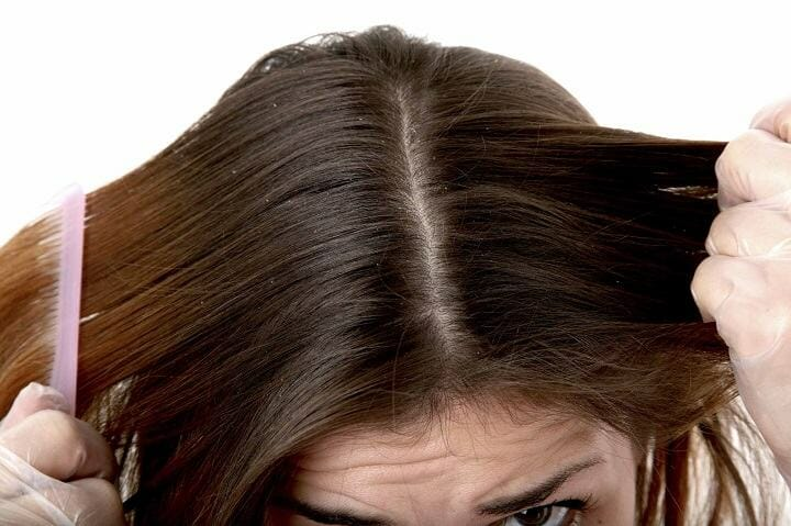 What Causes a Dry Scalp